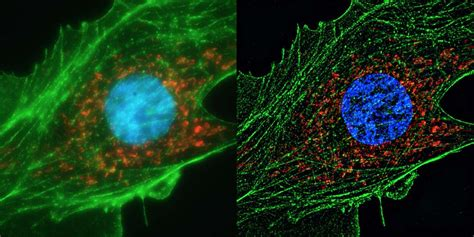 Human cell super resolution | A super resolution image of
